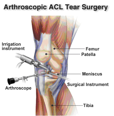 ACL Tear treatment