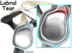 Slap Tear - Dr Ashwani Maichand