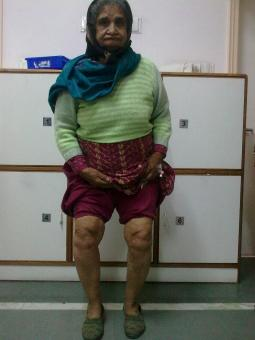 Mrs Santosh,70 yrs,osteoarthritis,suffering 15 yrs.